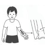 Buckle injury and common questions about buckle fracture